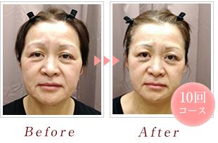 香里園 絆鍼灸整骨院 小顔矯正Before&After